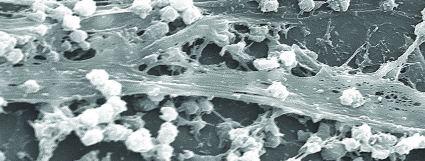 staphylococcus_aureus_biofilm_01_cmyk